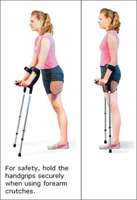 using crutches after lower limb amputation | articles