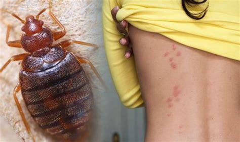 bed bug bites   avoid    rid