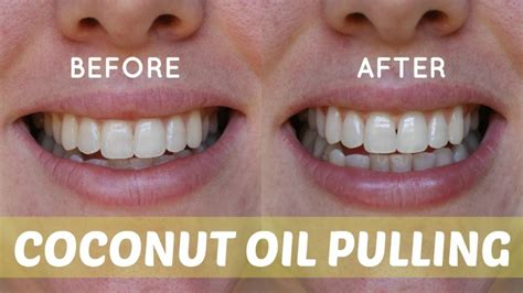 Pulling To Naturally Whiten Teeth Detox And Improve Skin by The Power Of Pulling 7 Amazing Health Benefits