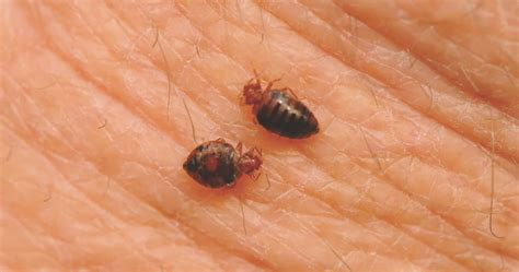 long  bed bug bites itch tips  facts  bed bug bites