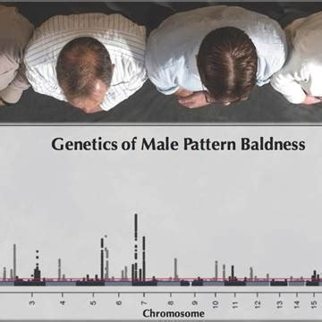 male pattern baldness test will i go bald genetic study shows complex answer nbc news