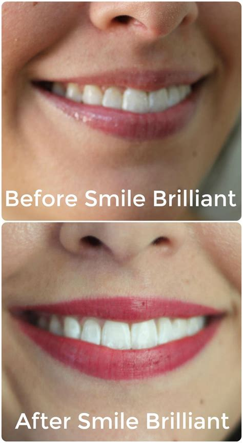 teeth whitening   results images