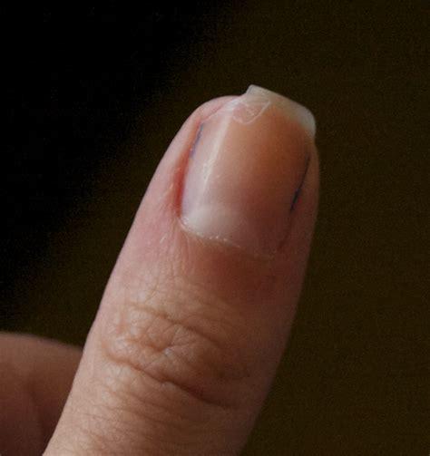 broken nail jem s broken nail