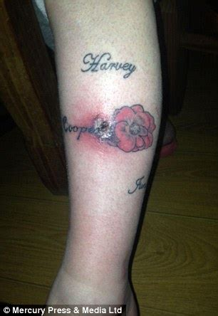 infected tattoo on leg sally lutkin left with black hole and scar in her leg