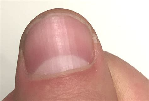 red nail beds fingernail and toenail abnormalities nail the diagnosis
