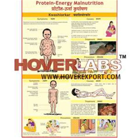 protein energy malnutrition protein energy malnutrition images primus green energy