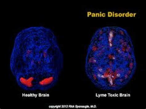Depression While Detoxing With Bartonella by Lyme Disease Florida Detox Detox Rapid Detox