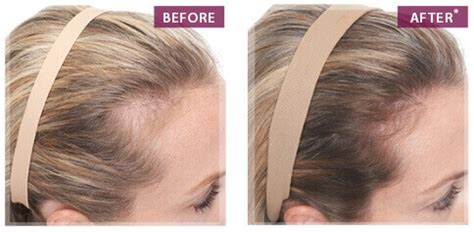 keranique before and after photos keranique hair regrowth hair growth products for women