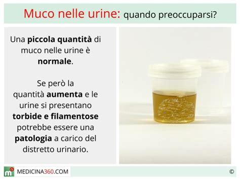 Sedimenti Nelle Urine by Cosa Significa La Presenza Di Proteine Nelle Urine
