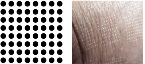 grid like pattern on skin fractional co2 laser for neck wrinkles how it really goes