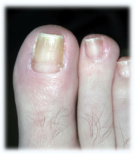 Toe Nail Care by Partial Nail Avulsion Healing Time Nail Ftempo