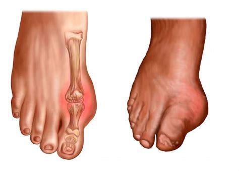 dolore interno dolore al piede lato esterno o interno al tallone cause