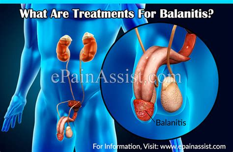 what is balanitis its treatment causes symptoms