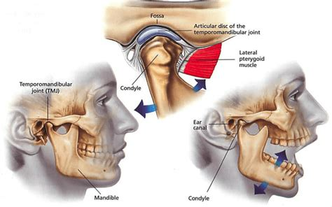 signs of jaw bone disease ehow ehow how to natural cures for tmj treatment