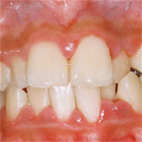swollen gums caused by infection? what to do