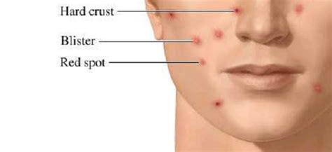 varicella bagno bagno bambini varicella malattie infettive