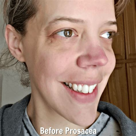 nose treatment the nose rosacea treatment that really works