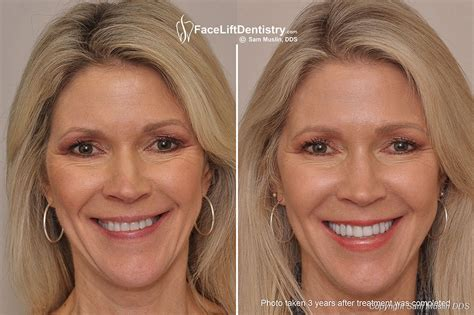 Next Facelift For Your Teeth 2 by Porcelain Veneers Pros And Cons