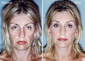 How Much Does A Face And Neck Lift Cost by Facelift Face Lift Facelift Melbourne Face Surgery