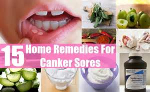 home remedy for canker sores 15 home remedies for canker sores style presso