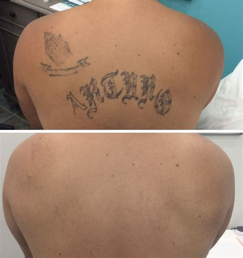 outside in tattoo removal awesome laser removal before and after contemporary