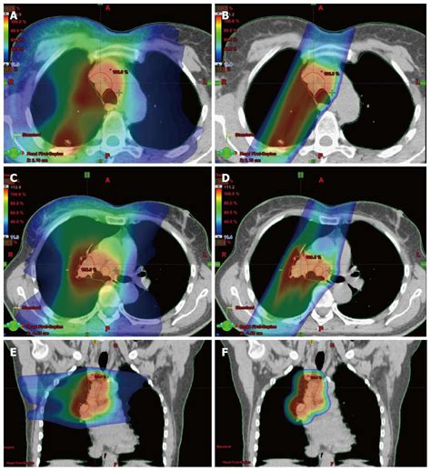 proton therapy lung cancer stage 4 proton beam therapy for locally advanced lung cancer a review