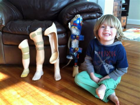 prosthetic leg for child to receive prosthetic leg designed by purdue students purdue