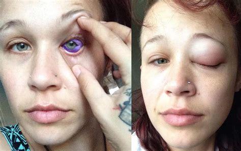 eyeball tattoo vice 眼球タトゥーの危険性 vice japan