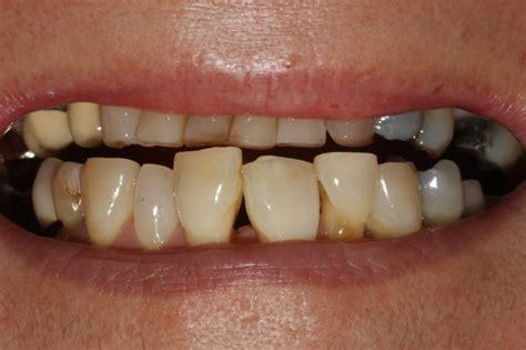 Veneer Komposit penwortham dental composite veneer 2