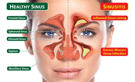 treatment sinus headache welcome to diaperch