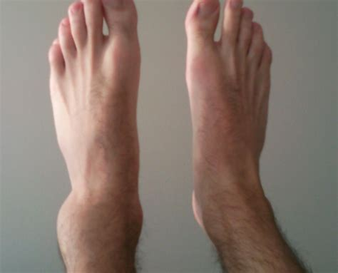 how to tell if is in how to tell if the ankle is broken or sprained tips