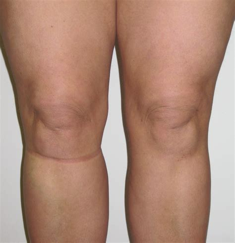 lipo section knee liposuction sculpting and refining