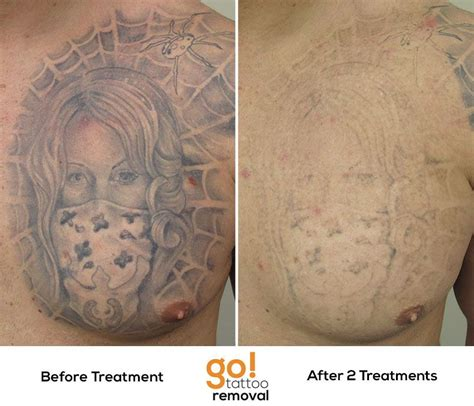 tattoo removal treatments amazing progress on this chest after 2 laser