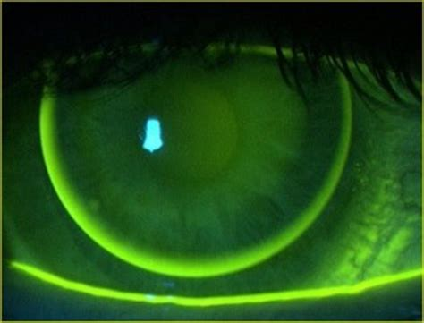 contact lenses andrew keirl opticians