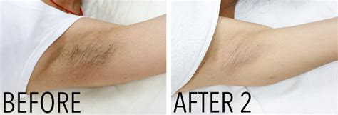 diode laser hair removal maine laser clinic