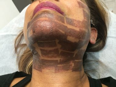 tattoo removal frankston low intensity laser therapy victorian cosmetic dermal