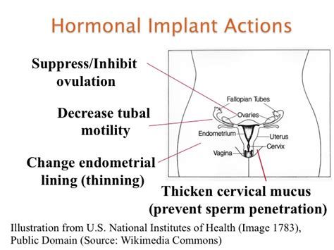 implant mood swings contraceptive implant procedure st paul hospital