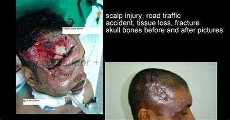 pics of small brain surgery cuts healing cosmetic plastic surgeon infection and wound healing