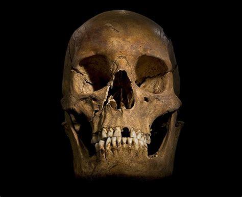 Era Sinistra The Shadow il cranio presenta diverse ferite probabilmente riportate