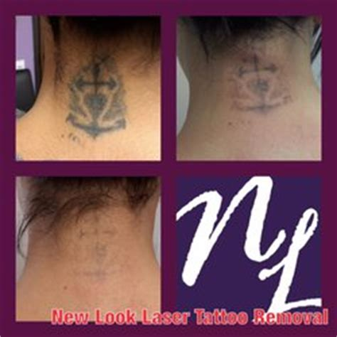 laser tattoo di jakarta new look laser tattoo removal 11 foto e 22 recensioni