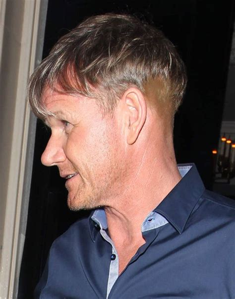 best haircuts fir transplanted hair gordon ramsay hair transplant pictured with bizarre new