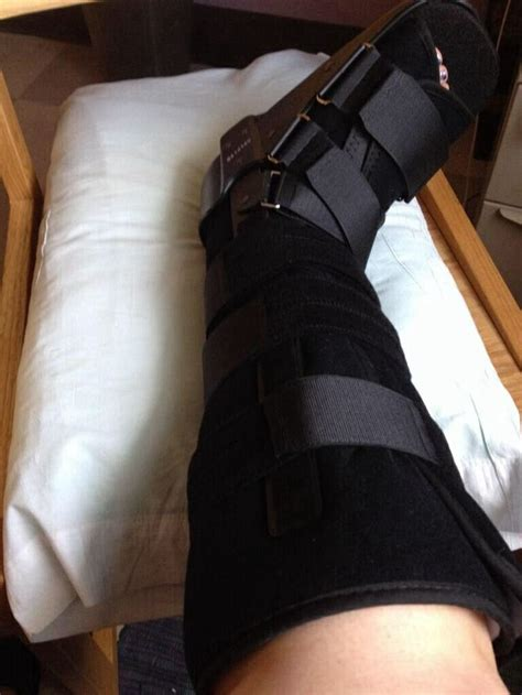 leg sprain cast boot sprain broken ankle broken foot broken leg