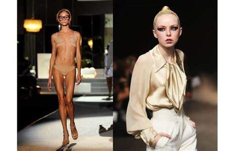 france bans super skinny models france bans super skinny models in anorexia cldown