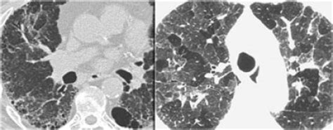mosaic pattern radiology assistant the radiology assistant lung hrct common diseases