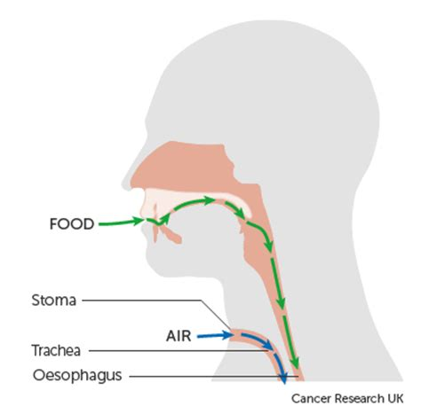 laryngectomy diagram which surgery for laryngeal cancer cancer research uk