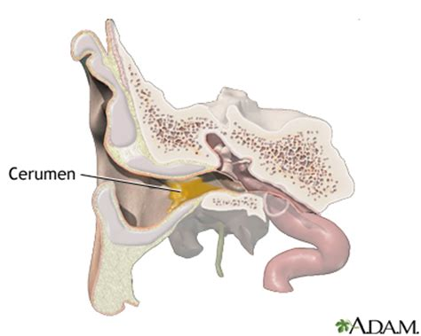 diagram of ear canal with wax ear wax medlineplus encyclopedia