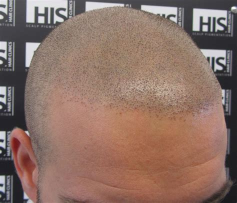 scalp micropigmentation to make hair ticker pictures blue scalp micropigmentation dots why this should never