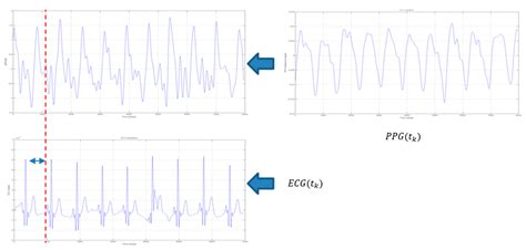 ecg pattern analysis for emotion detection sensors free full text an advanced bio inspired