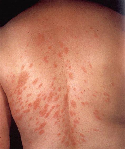arrossamento sedere dermatiti allergiche allergia stop