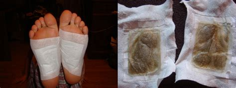 Sweat Detox Results by Detox Foot Pads Do They Really Work The And Shoes